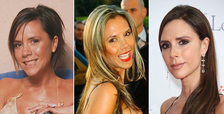 افراد مشهوری که به عمل زیبایی خود اعتراف کردند | از بریتنی اسپیرز تا جنیفر آنیستون